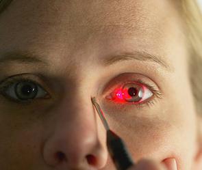 583446 Ученые научились менять цвет глаз навсегда