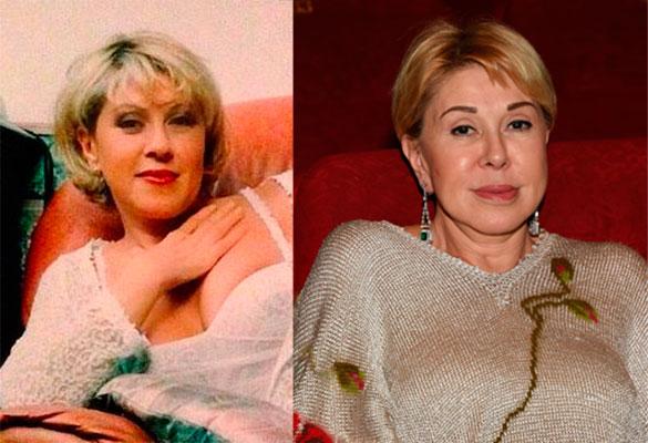 овсиенко фото до и после пластики фото