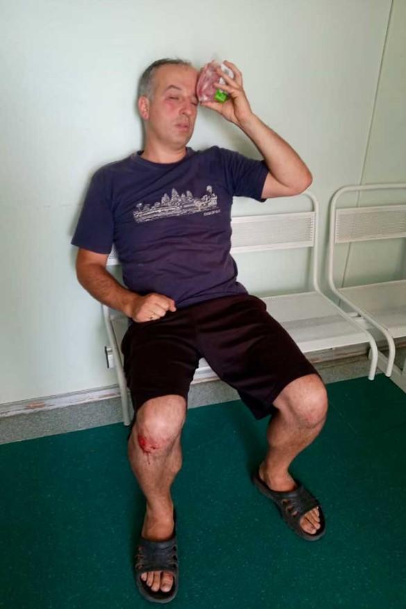 Пострадавший Алексей Григорьев. Фото: пресс-служба
