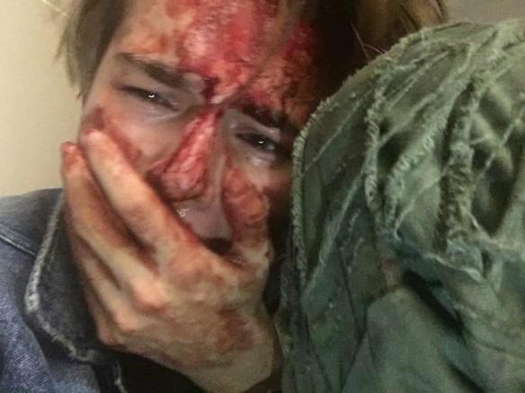 Никита Турчин после избиения. Фото: личный архив