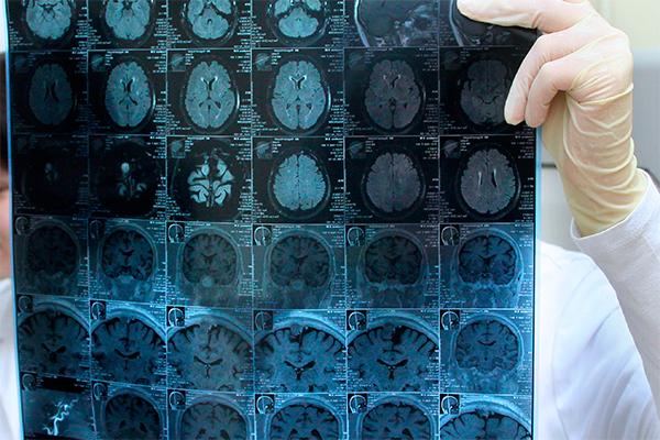 Интернет вызывает изменения мозга