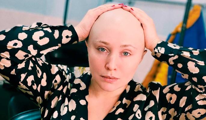 Потеряла шикарные волосы: вид облысевшей Спиридоновой вызвал оторопь