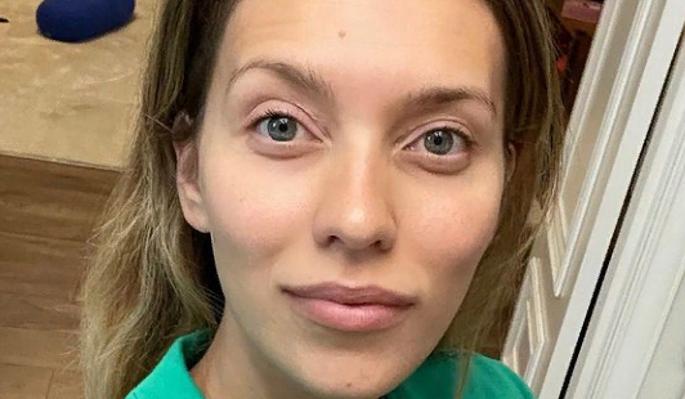 Обнаженная Тодоренко с разбитой головой шокировала публику